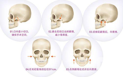 颧骨整形手术