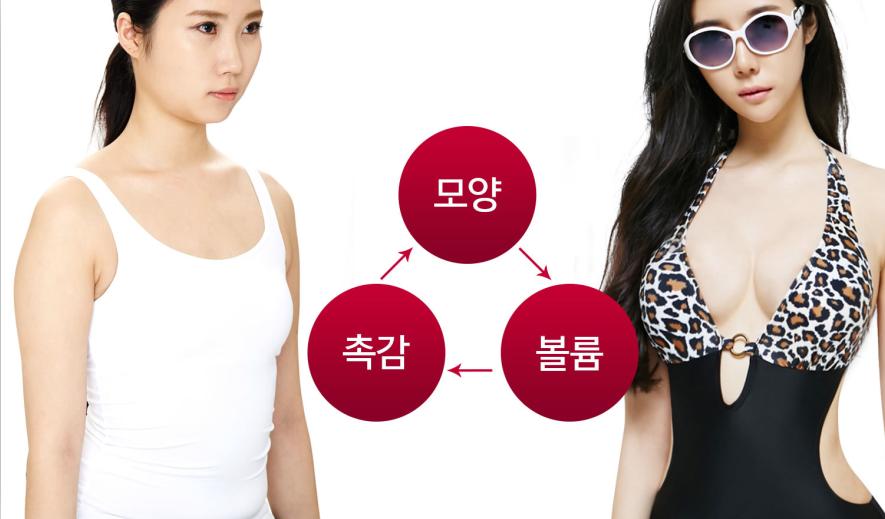 韩国珠儿丽整形医院隆胸案例