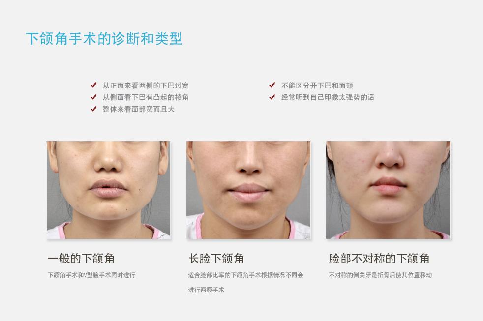 韩国新帝瑞娜整形医院 下颌角手术诊断类型