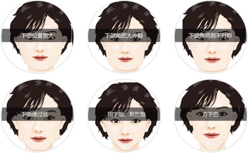 适合做V-line长曲线手术的脸型图
