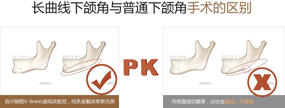 V-line长曲线改脸型和传统下颌角手术的区别