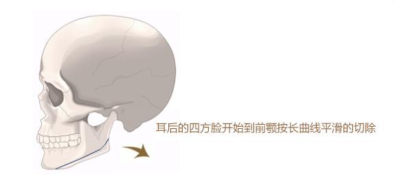 令世界折服的技术-上海首尔丽格洪性范院长V-line长曲线改脸型手术