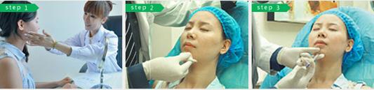 非手术注射隆下巴