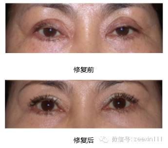 双眼皮修复前后对比图