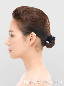 韩国新帝瑞娜整形医院驼峰鼻术后效果侧面图