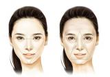 杭州格莱美BodyTite 黄金超声刀,重新定义你的视觉年龄