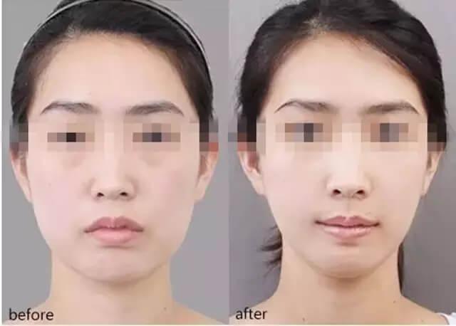 注射瘦脸针效果对比