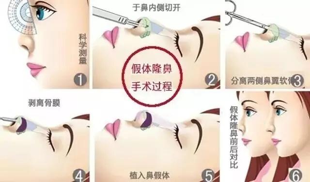 假体隆鼻手术过程