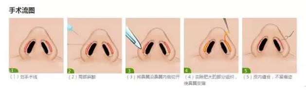 鼻翼内切术