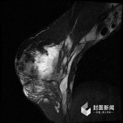 中国整容狂人红粉宝宝注射奥美定后的X光片