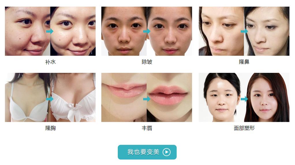 天大玻尿酸补水、除皱、隆鼻、隆胸、丰唇、面部塑形案例