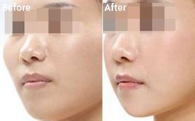 成都西婵整形美容医院改脸型对比案例