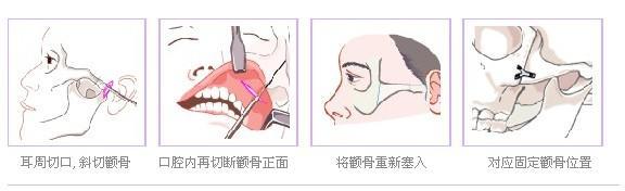 磨颧骨手术示例图