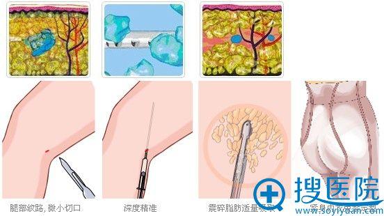 吸脂手术流程