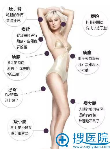 吸脂手术可改变身体的部位