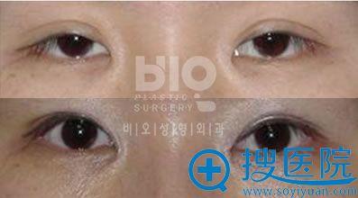 韩国bio整形外科医院辛容镐院长上睑下垂手术案例图片