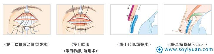 韩国bio整形外科医院辛容镐为我们讲解上睑下垂手术的原理