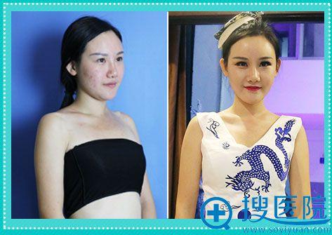 第二届胸模大赛亚军李圆圆整容前后对比照片