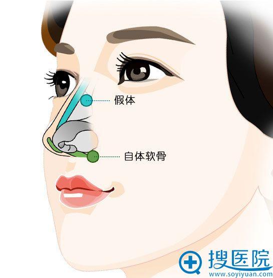 内蒙古慕颜整形医院鼻部整形