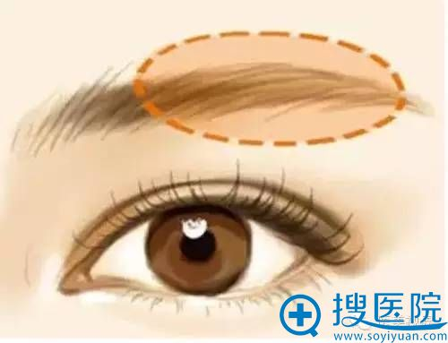 欧式双眼皮必备条件之二:眉弓够挺