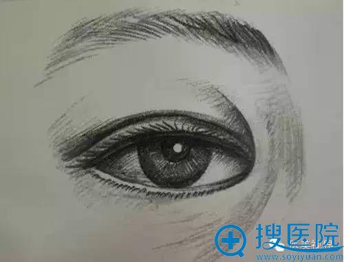 欧式双眼皮必备条件之一:没有内眦赘皮