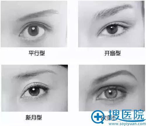 双眼皮四种类型:平行型、开扇型、新月型和欧美型
