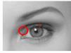 欧式双眼皮和韩式三点双眼皮前后对比 哪个更好看?