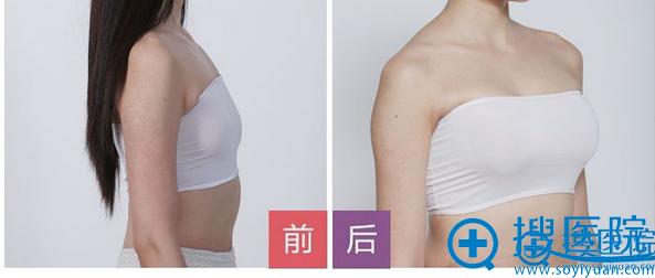 深圳鹏程整形医院胸部整形案例