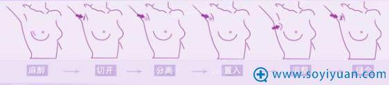 假体隆胸流程
