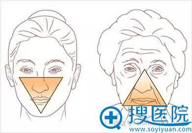年轻女性与年长女性面部下垂对比图片