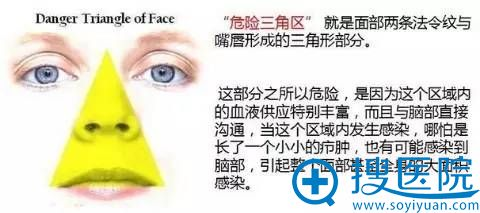 鼻子处于危险三角区 尤其要注意预防感染