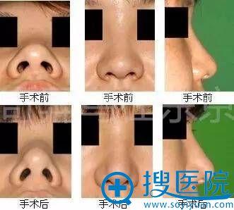 中北信昭鼻部整形案例手术前后对比图2