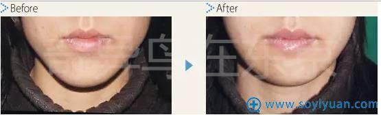 中北信昭面部轮廓整形案例3:下巴过长削骨手术对比图