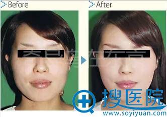 中北信昭面部轮廓削骨案例1:下颌角削骨前后对比照片