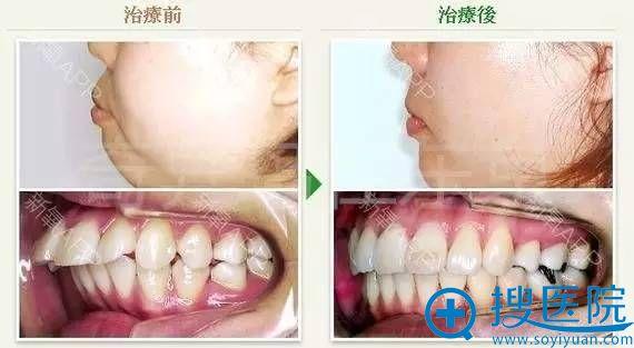 中北信昭面部轮廓整形案例3:正颌手术