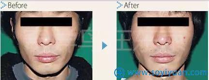 中北信昭面部轮廓案例2:颧骨内推案例对比图片