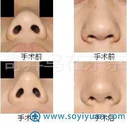 中北信昭鼻部整形案例对比图片