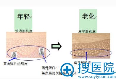 年轻肌肤和老化肌肤对比