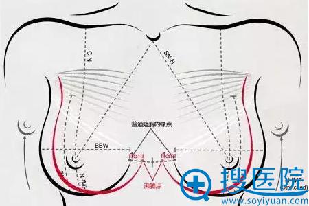 沸腾丰胸术原理