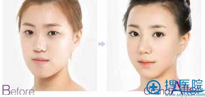 重庆华美整形美容医院割双眼皮好不好 多少钱