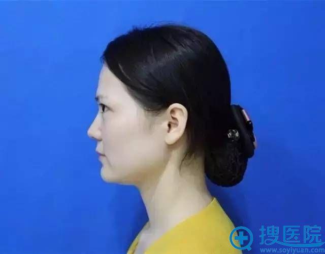术前侧面照展示,鼻头比较肥大