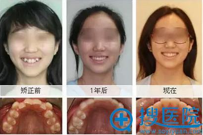 牙齿排列不齐矫正真实案例