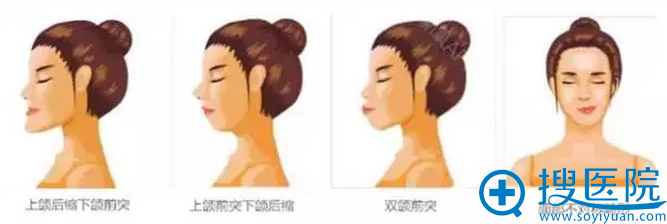 """上颌后缩下颌前突、上颌前突下颌后缩、双颌前突(俗称""""龅牙"""")、面部不对称畸形示例"""
