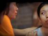 泰国19岁的女大生潘柏突嘴牙齿矫正真实案例