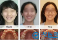 牙齿整形怎么样 牙齿矫正真的能改变脸型吗