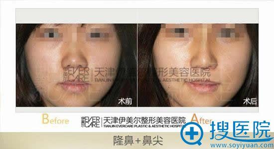 修复大鼻子的手术方法