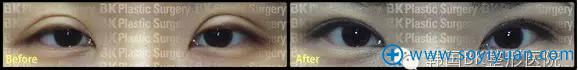 韩国BK医院提醒您 避开这些误区眼部整形就不会再失败
