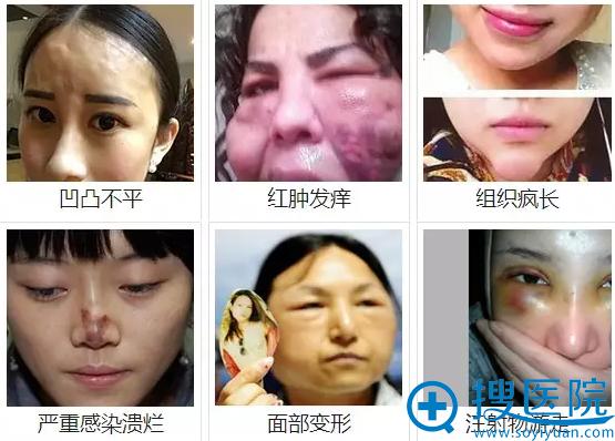 奥美定会造成:凹凸不平、红肿发痒、组织疯长、严重感染溃烂、面部变形、注射物游走等危害