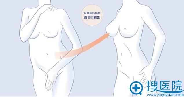 自体脂肪隆胸效果示意