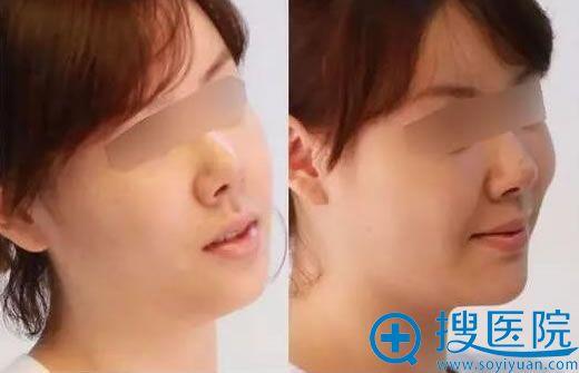 洛阳华美医疗美容医院玻尿酸隆下巴.jpg